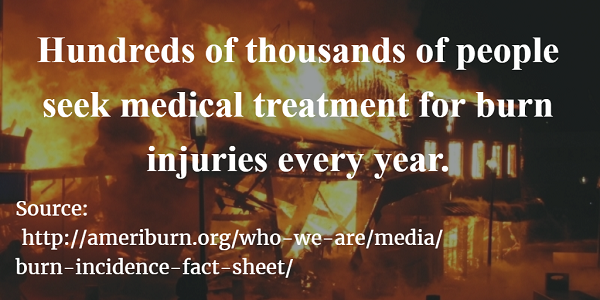 Burn injury statistics in America