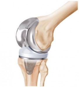 illustration of zimmer nexgen knee system | Knee replacement injury lawyers